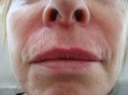 Top lip lines after dermal filler treatment
